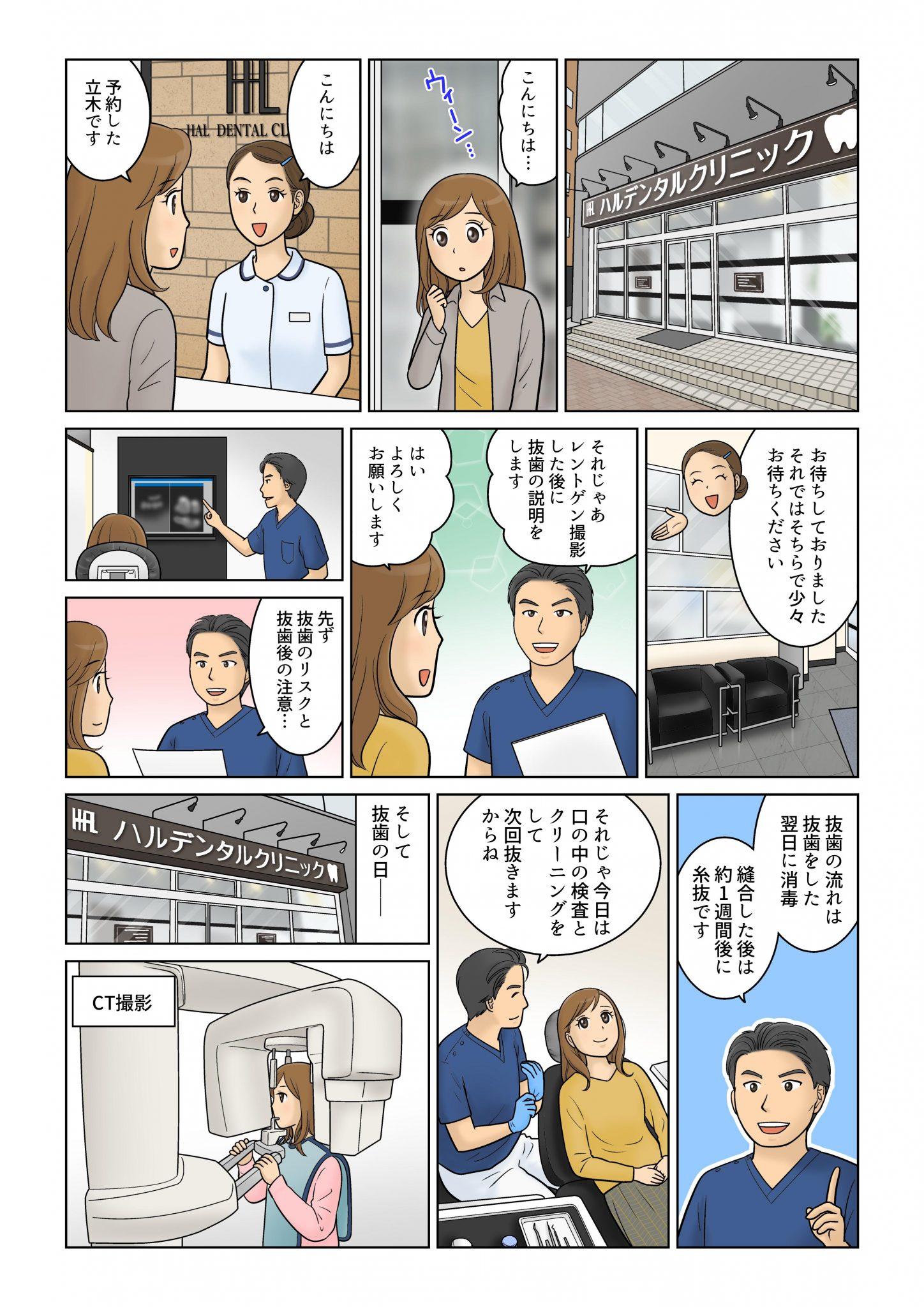 親知らずの説明3